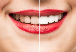 Slider with Before & After Teeth Whitening Marietta GA