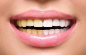 Teeth Whitening Before and After Marietta, GA